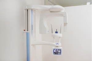Image for The Differences between New and Used Panorex X-ray Machines with ID of: 4996579